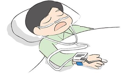 閉塞性睡眠時無呼吸