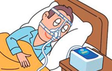 ②経鼻的持続陽圧呼吸療法(シーパップ(CPAP)療法)